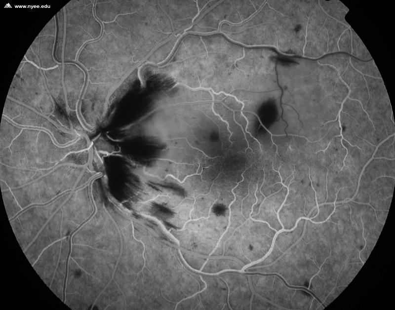 Central Retinal Vein Occlusion CRVO w Cilio Retinal Artery ...