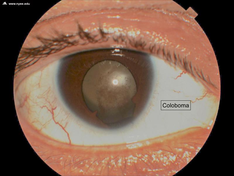 iris and choroidal coloboma  1 of 7