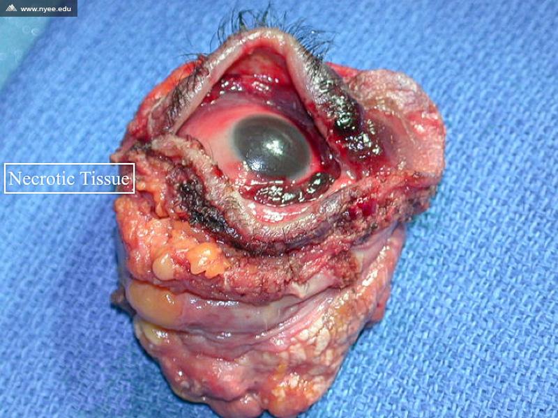 Rhino Orbital Cerebral Mucormycosis (5 of 12) - NYEE