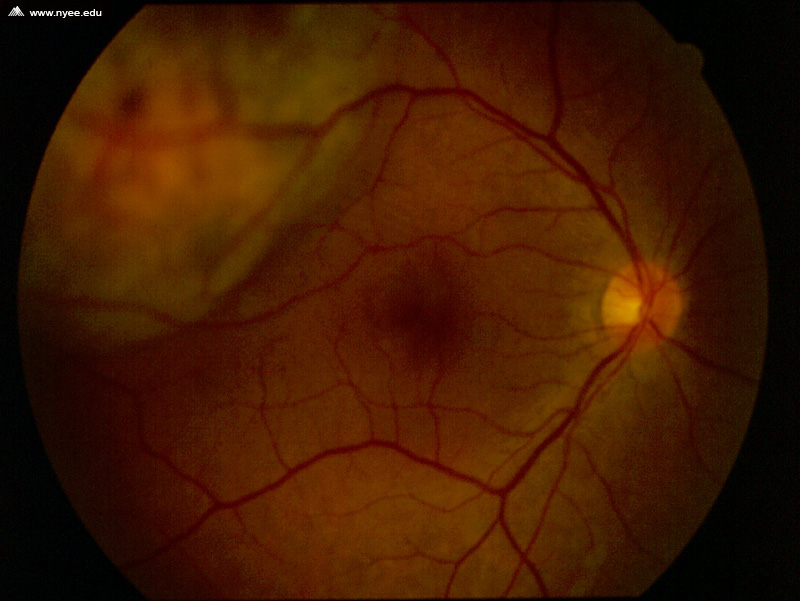 Ocular Melanosis: The Darker Fundus - NYEE