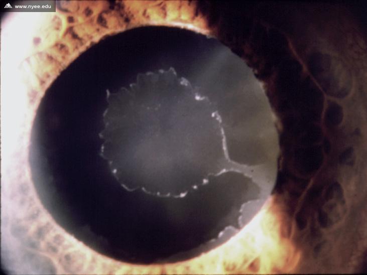 pseudoexfoliation glaucoma