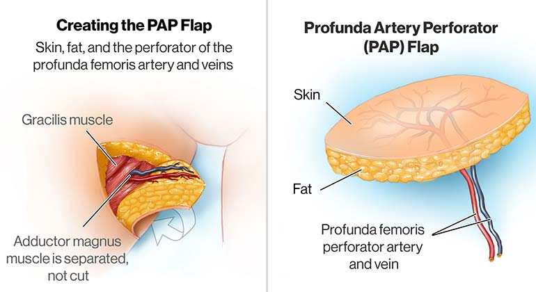 Diagram of Profunda Artery Perforator Flap (PAP) breast reconstruction procedure
