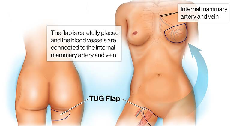 Diagram of Inner Thigh or Transverse Upper Gracillis (TUG) Flap breast reconstruction