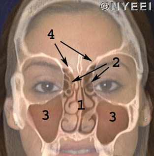 Nasal and anterior skull base tumors
