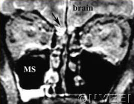Coronal MRI of the patient