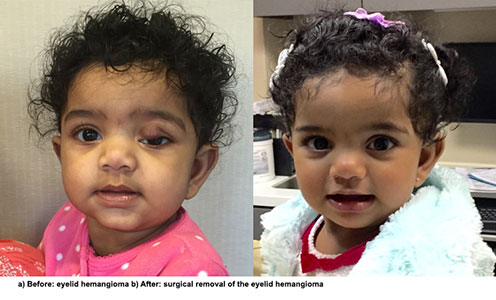 NYEE Patient Story: Hemangioma on Upper Eyelid