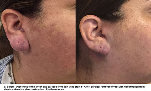 NYEE Patient Story: Port-Wine Stain on the Cheek, Neck and Ear