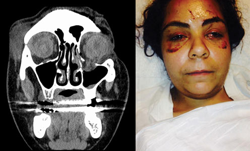 NYEE Patient Story: Severe Eye Damage 2