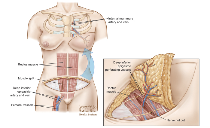 Breast reconstruction with flap
