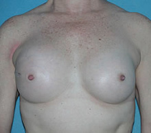 Breast Reconstruction 3 Months After IGAP
