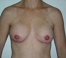 Breast Reconstruction After TUG Flap