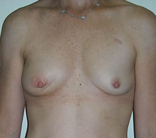 Breast Reconstruction Before TUG Flap