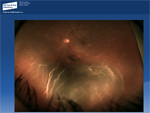 Exudative Retinal Detachment - Ophthalmology Webcasts