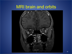 Neuro-Ophthalmology Grand Rounds - Ophthalmology Webcasts