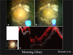 Optic Nerve Anomalies - Ophthalmology Webcasts