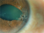 Pediatric Corneal Trauma - Ophthalmology Webcasts