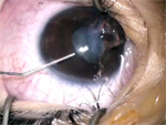 Penetrating Corneal Injuries - Ophthalmology Webcasts