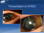 Post-LASIK Infectious Keratitis - Ophthalmology Webcasts