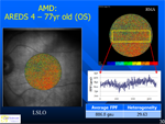 Retinal Metabolic Imaging - Ophthalmology Webcasts