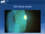 Scleritis - OphthalmologyWebcasts