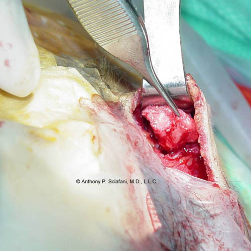 Removing Vesitgal Malformed Cartilage