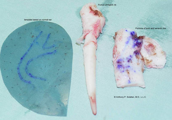 Rib Cartilage to Sculpt as New Auricle