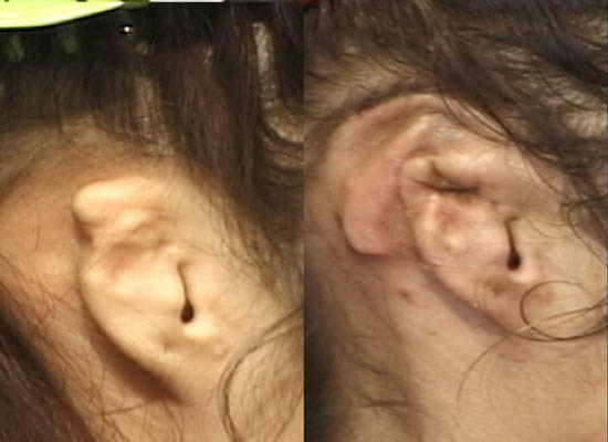 Stage 1 and 2 Post Microtia Surgery
