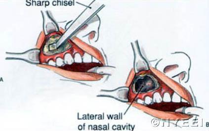 sinusitis operatie