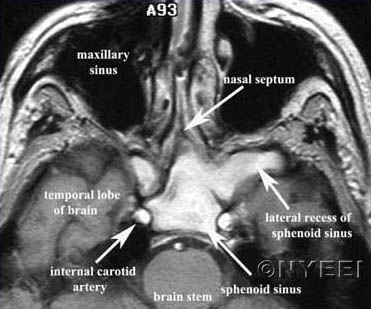 MRI of Acute Left Sphenoid Sinusitis