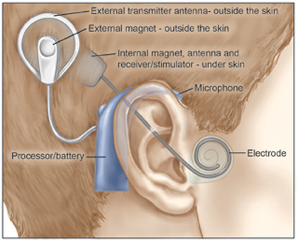Cochlear Implant External Diagram