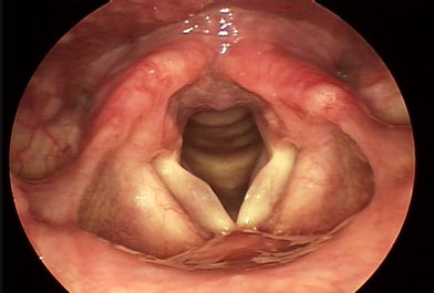 Cyst on Left Vocal Fold