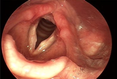 Firm Cyst on Right Vocal Fold