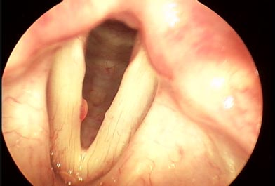 Protruding Polyp on Left Vocal Fold