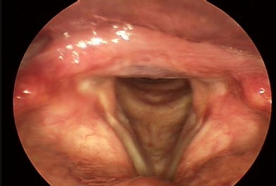 Atrophic Vocal Folds: 'The Older Voice'