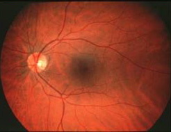 About the Retina