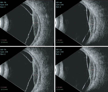 2D B-Scan Ultrasonography Previous Study