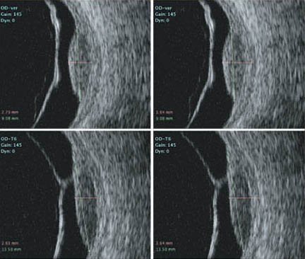 2D B-Scan Ultrasonography Subsequent Study